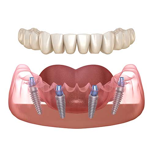 All-on-4 dental implant restoration