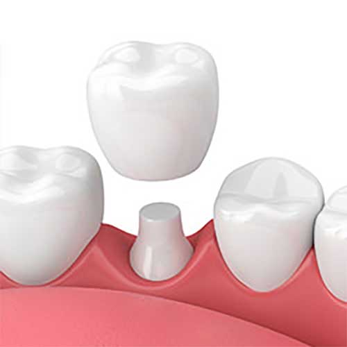 dental crowns camas