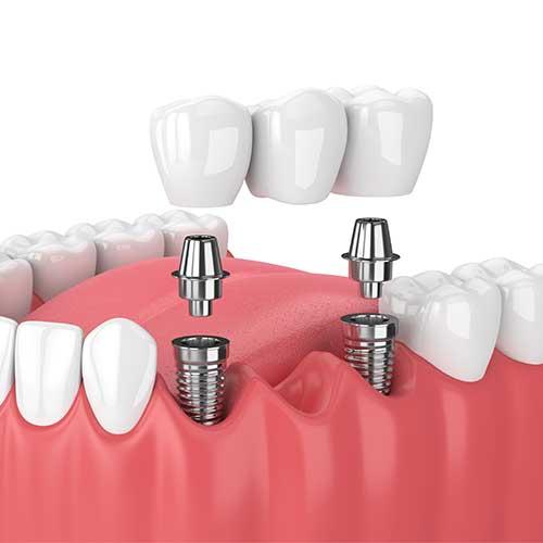 multiple tooth dental implants