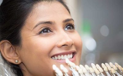 What Are Dental Veneers? Everything You Should Know
