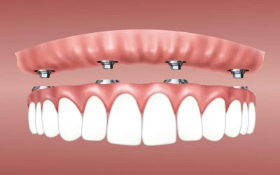 All on 4 Dental Implants vs Dentures