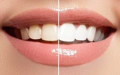 Professional Teeth Whitening vs. Home Teeth Whitening What You Need to Know
