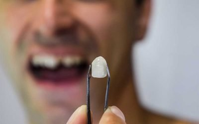 What To Do When Old Dental Work Is Failing